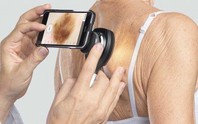 Dermatoscopio HEINE®NC2, ¡con múltiples posibilidades de aplicación!